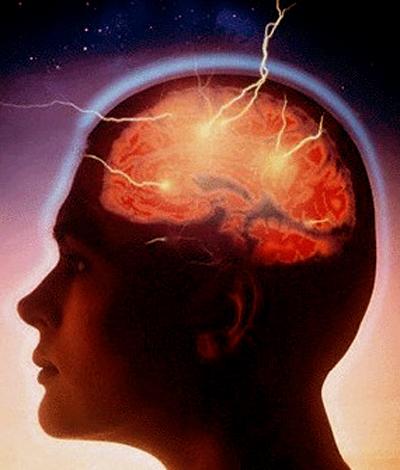 ¿Cómo nos afectan los diferentes tipos de estrés? 2