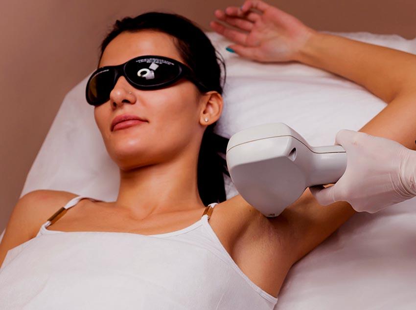 ¿Cuándo es recomendable la depilación con láser diodo? 1