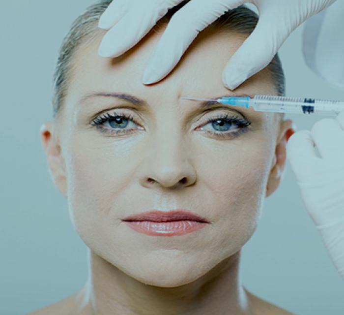 ¿Cuáles pueden ser los efectos secundarios del botox? 2