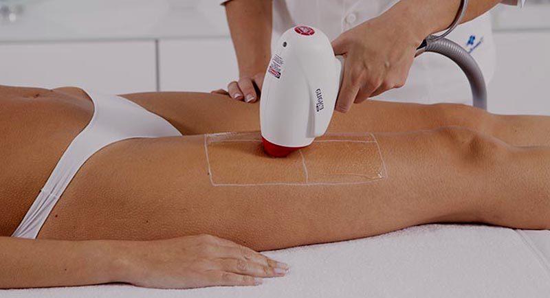 ¿Cuándo es recomendable la depilación con láser diodo? 2