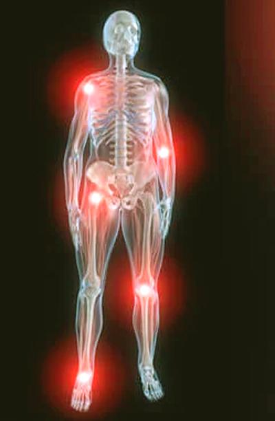 Maneras de aliviar el dolor articular nocturno 2