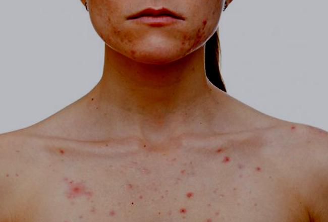 ¿Por qué puede aparecer acné en mujeres adultas? 1
