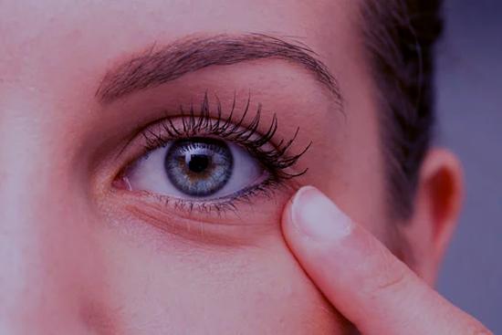 ¿Por qué es importante aplicar un producto para el contorno de ojos? 2
