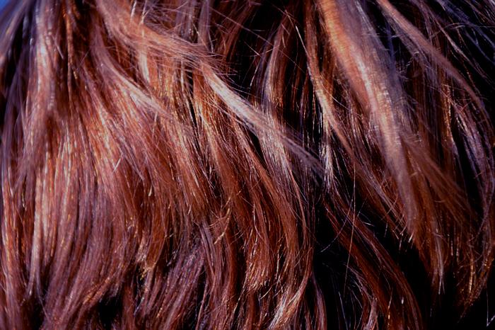 ¿Qué debo tomar en cuenta al teñir mi cabello si padezco psoriasis? 2