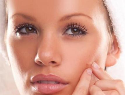 acne-tardio-3