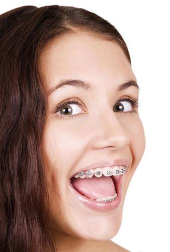 azagra-ortodoncia-tradicional-450