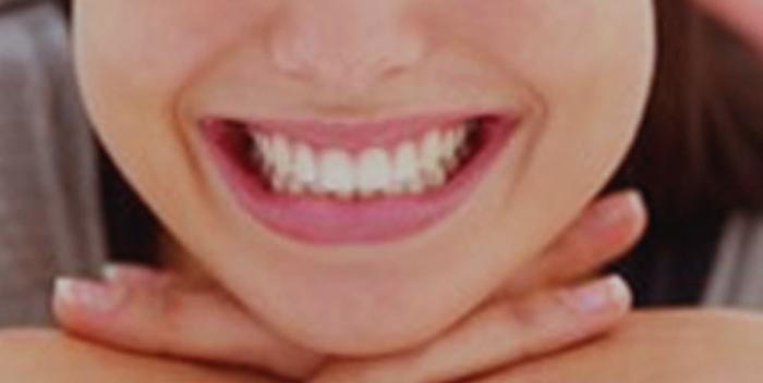 Cómo tener una sana y linda sonrisa 2