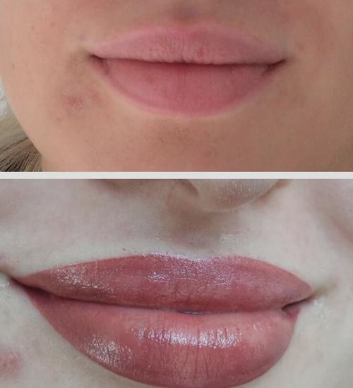 ¿Es dolorosa la micropigmentación de labios? 5