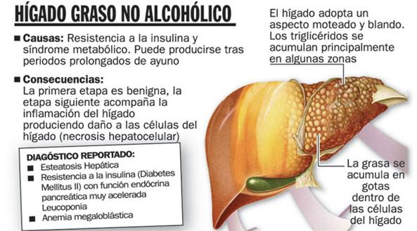 higado graso no alcoholico