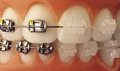 ortodoncia5