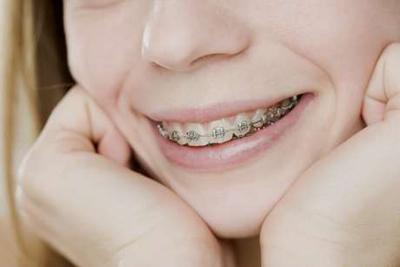 ortodoncia_tratamiento