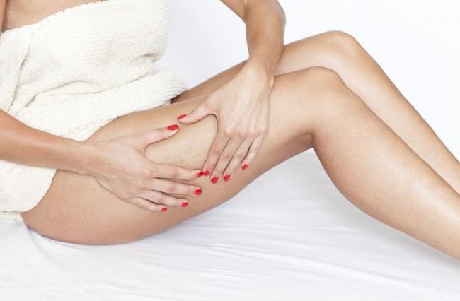 tratamientos-contra-la-celulitis-646601_w650
